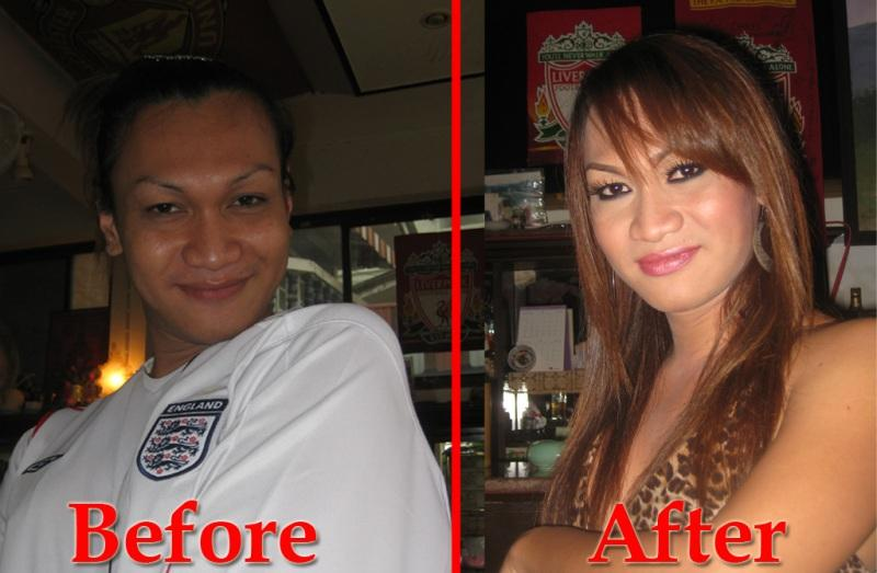99030_before_after_123_336lo